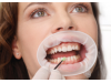 OptraGate 3D Lip & Cheek Retractor
