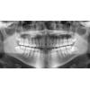 Panoramic X-Ray Film