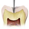 Fissurotomy Diagnostic & Finishing Burs